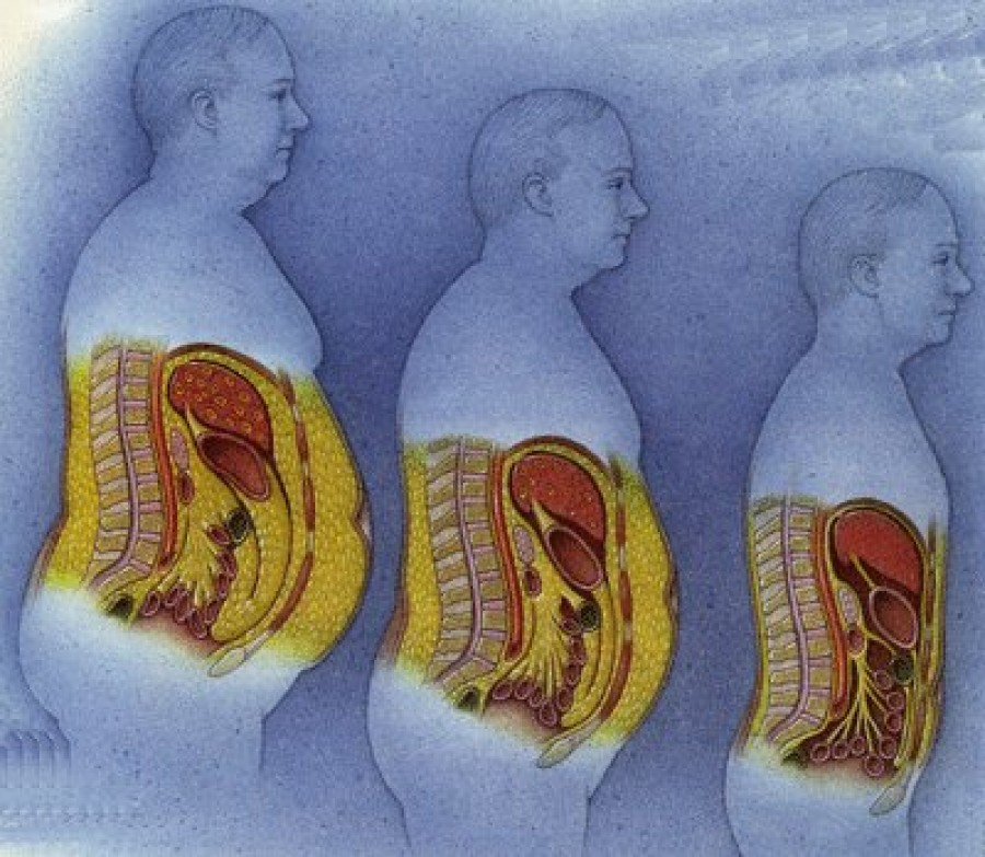 Female belly fat related to depression