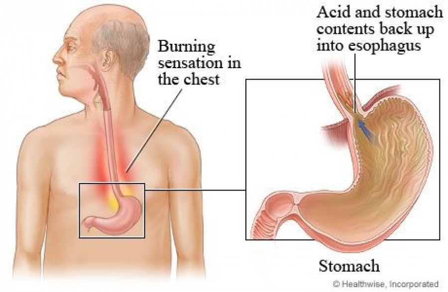 Sour Stomach Symptoms