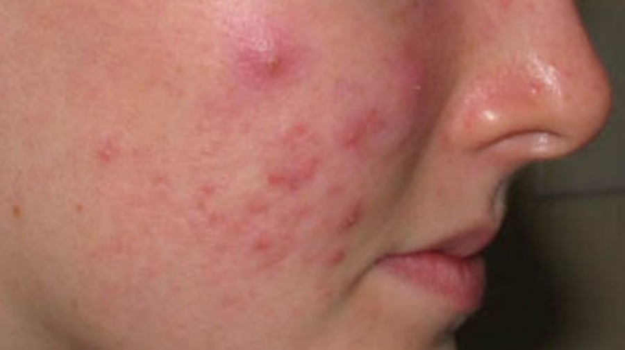Natural skin virus can fight against acne bacteria