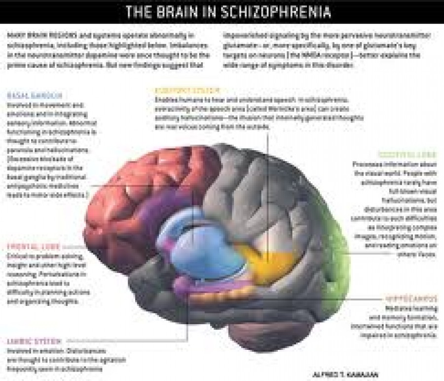 Causes & Effects of schizophrenia