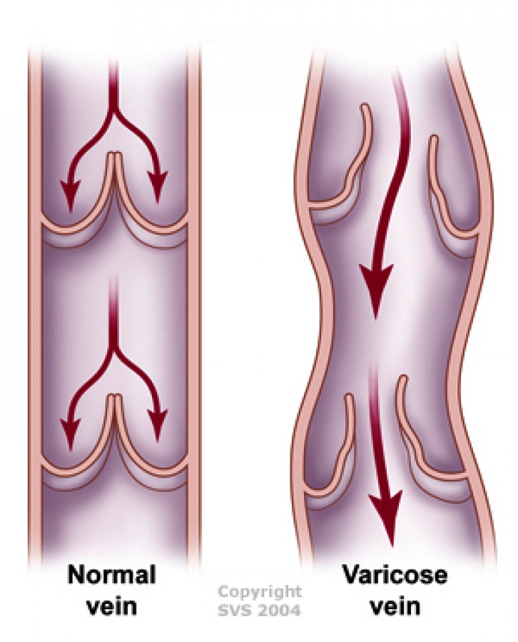 Pregnancy and Varicose Veins