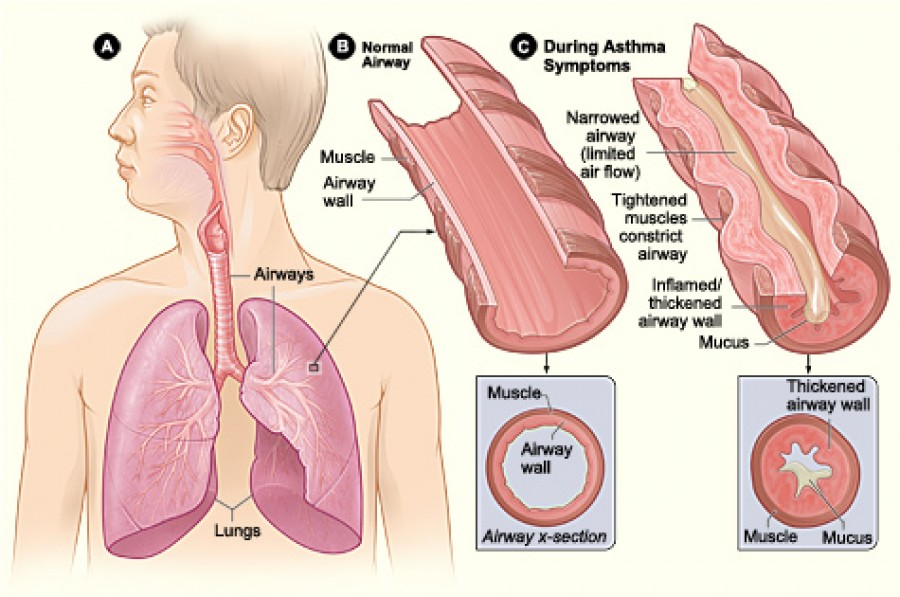 Can the Weather Affect a Person's Asthma?