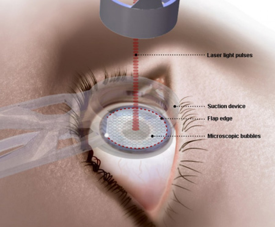 Is it safe to have vision-correction surgery during pregnancy?