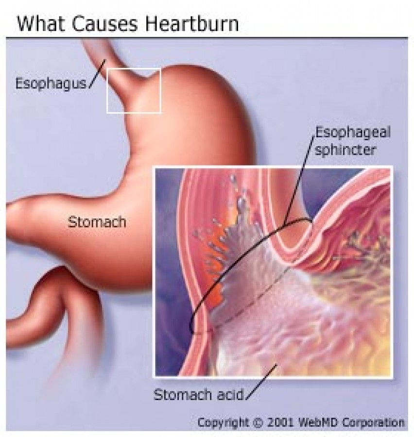 Which heartburn medicines are safe during pregnancy?