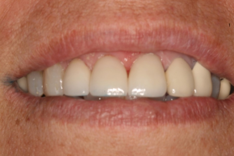 Can Too Much Juice Discolor Teeth?